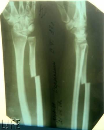 Инцидент в Ростовском зоопарке