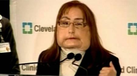 Женщина с пересаженным лицом впервые показалась на люди